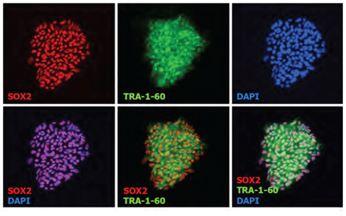Expression of the pluripotent markers, Sox2 and Tra-1-60 in ESI-017,